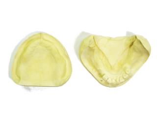 全顎模型をご用意ください。(片側義歯の場合も)