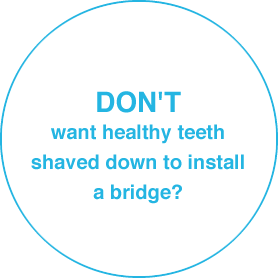 DON'T want healthy teeth shaved down to install a bridge?